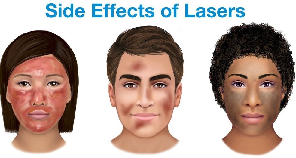 عوارض جانبی لیزر موهای زائد
